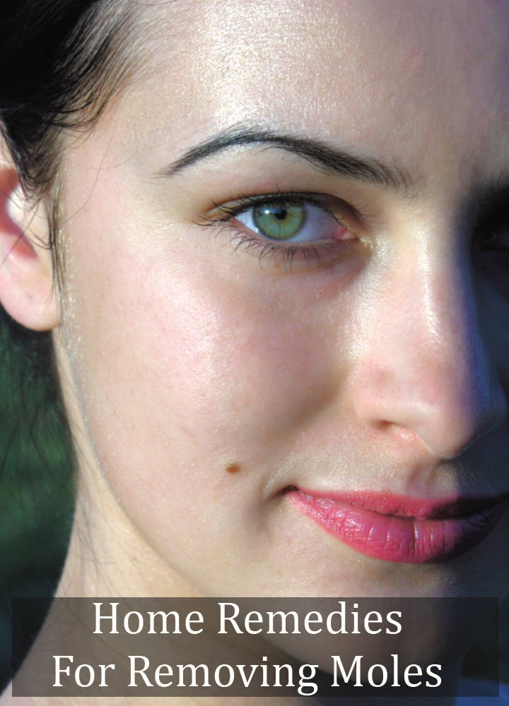 Home Remedies For Removing Moles