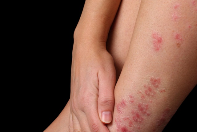 Heals Skin Diseases