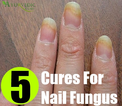 5 Cures For Nail Fungus