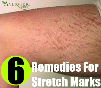 6 Remedies For Stretch Marks