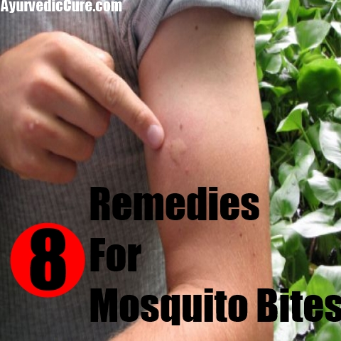 8 Remedies For Mosquito Bites