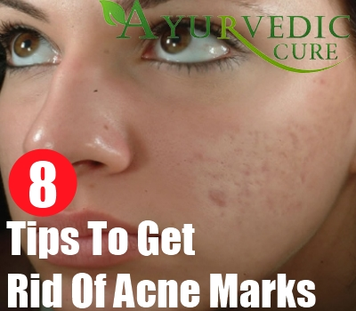 8 Tips To Get Rid Of Acne Marks