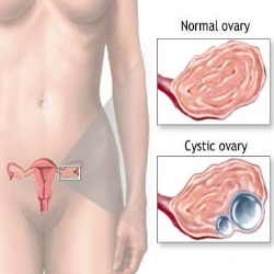 Top 5 Causes Of Cysts