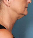 Azura Skin Care Center - Cary, NC - Kybella Treatment