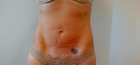 Four Weeks After Fourth Exilis Treatment at Azura Skin Care Center