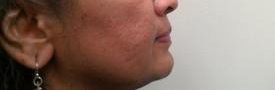 One Month After Second Microneedling at Azura Skin Care Center