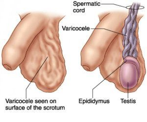 veins in the foot diagram 2jz ge wiring should i be concerned about a varicose vein my testicle varicocele