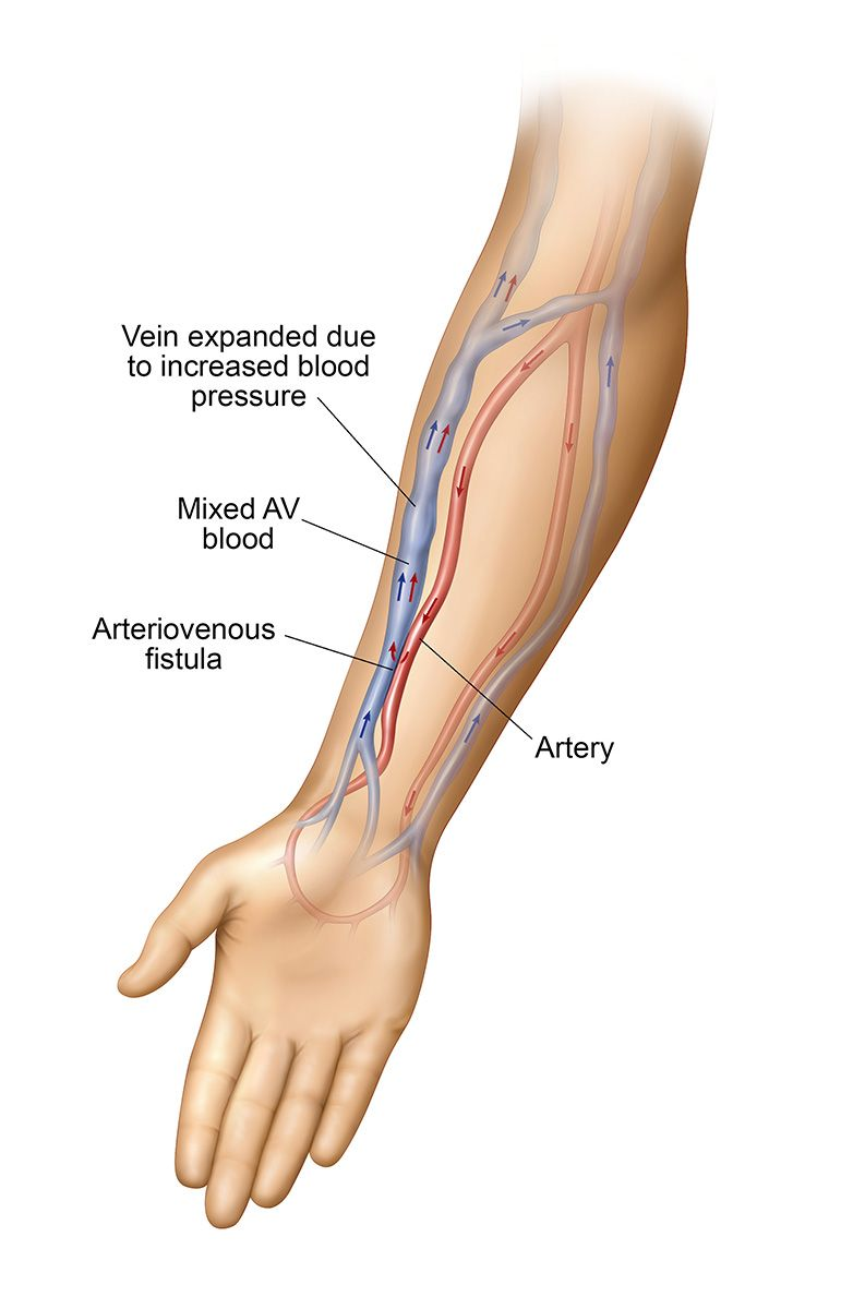 medium resolution of an av fistula is a surgical connection made between an artery and a vein created by a vascular specialist an av fistula is typically located in your arm