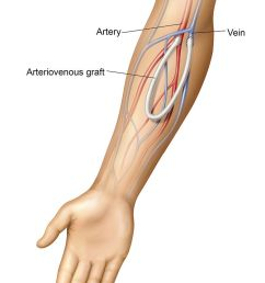 an arteriovenous av graft is a type of access used for hemodialysis the graft is usually placed in the arm but may be placed in the leg if necessary  [ 782 x 1200 Pixel ]