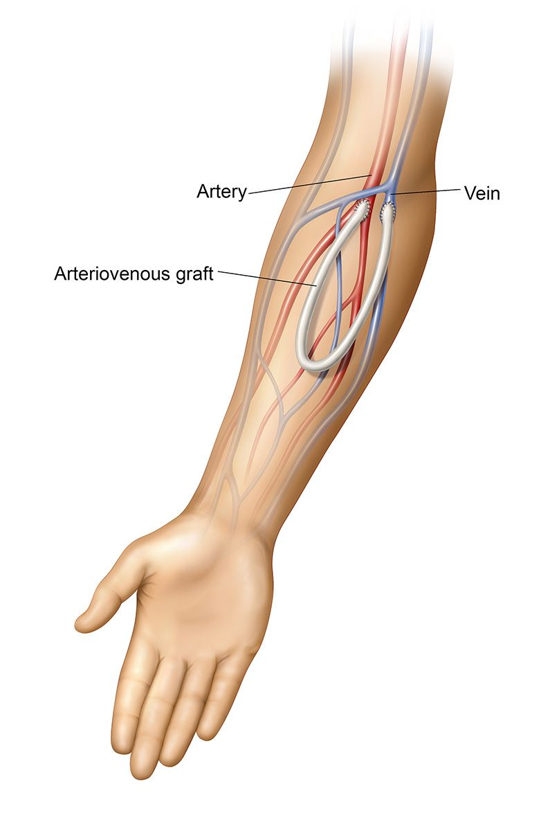 medium resolution of an arteriovenous av graft is a type of access used for hemodialysis the graft is usually placed in the arm but may be placed in the leg if necessary
