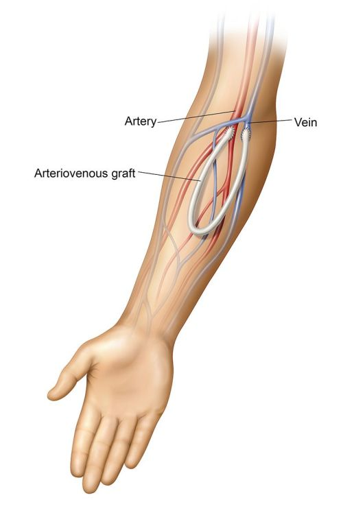 small resolution of an arteriovenous av graft is a type of access used for hemodialysis the graft is usually placed in the arm but may be placed in the leg if necessary