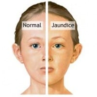 Normal and Jaundice
