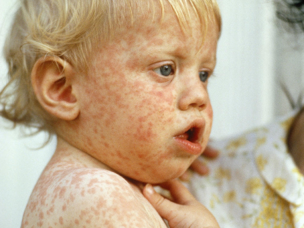 Childhood rashes, skin conditions and infections (photos ...