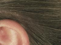 Head lice 101: What lice look like, how they behave, and ...