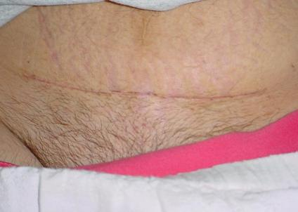 C-section scars: Photos from 2 days postpartum to 2 years ...