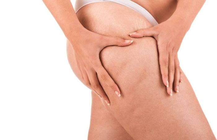 come curare le cellulite