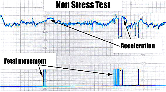 nonstress test