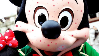 Mickey Mouse Measles