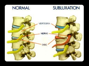 What is a subluxation