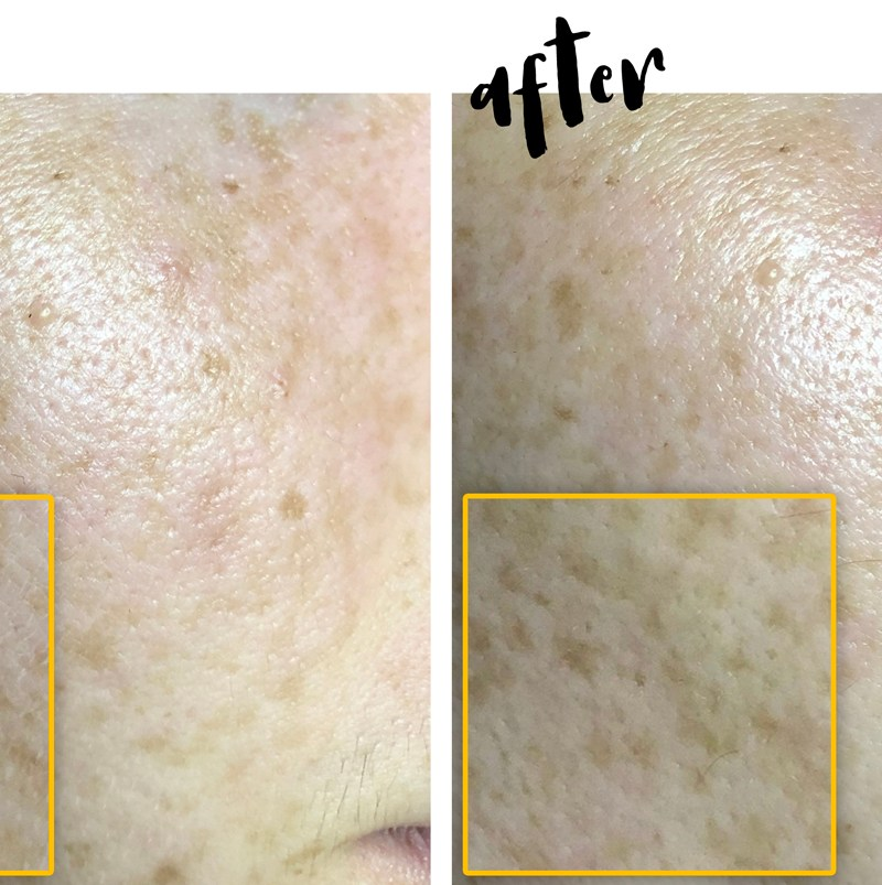 My Dermaplaning Experience