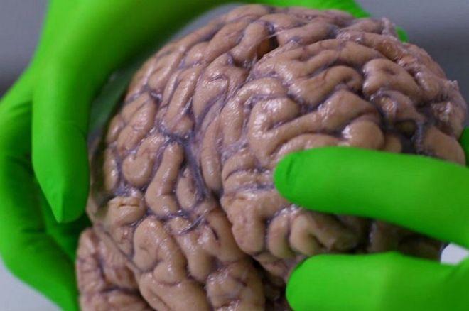 El cerebro humano es el organismo más complejo del planeta.