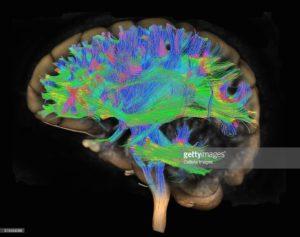 El mito de los hemisferios del cerebro humano
