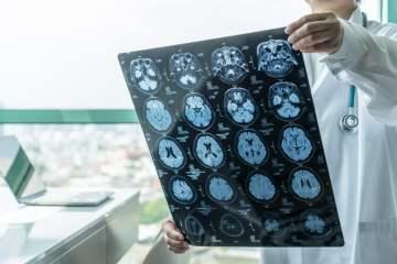 Red de agentes activos para la detección precoz del alzhéimer