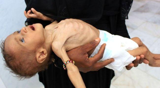 İç savaş devam ediyor Yemen'de neler oluyor