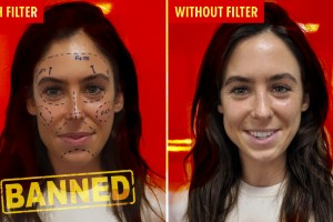 instagram plastic surgery filter banned