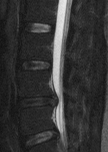 herniated disc mri sciatica stretches