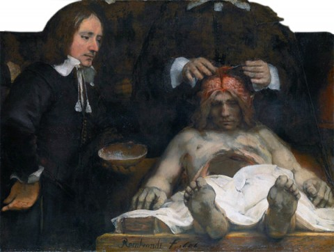 Dr_Deijman's_Anatomy_Lesson_(fragment),_by_Rembrandt