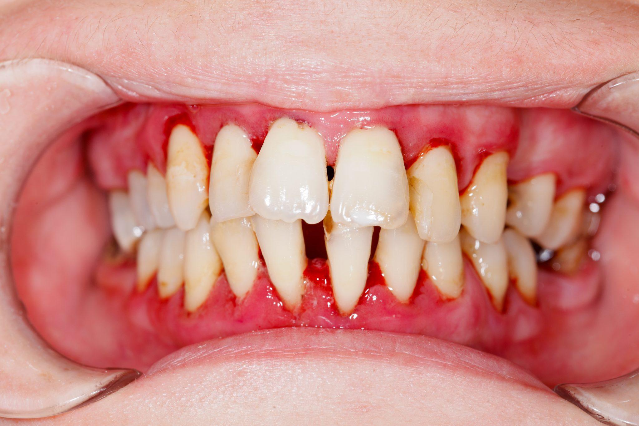 4 Telltale Signs of Gum Disease