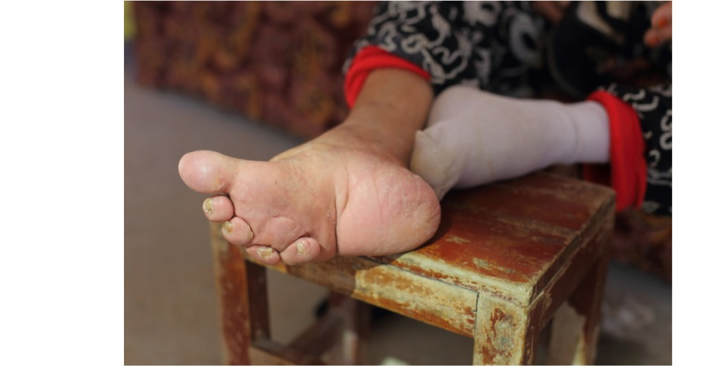 Verkrüppelte Füße nach Jahren