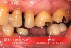 群馬 歯科 根管治療 根幹治療