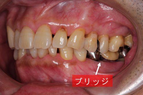 インプラント治療 歯科 群馬