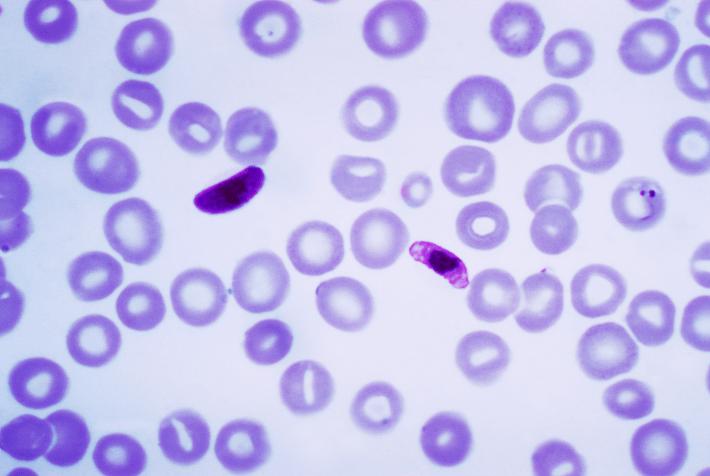 Autoridades de saúde do Amazonas investigam parasita que transmite malária