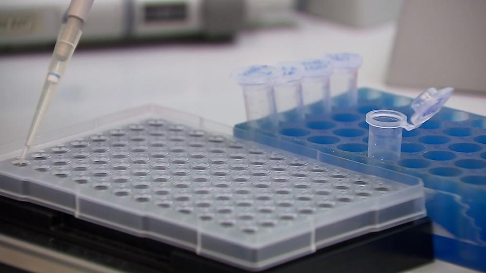 Pacientes reclamam de demora em resultados de exames da Covid-19