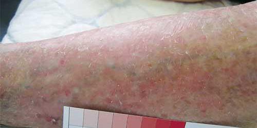 Hypostatisch eczeem oorzaak symptomen en behandeling