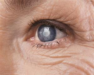 Causes & Symptoms Of Cataract Related Eye Conditions