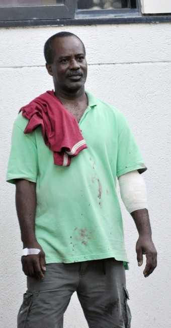 Victim Stephen Babb in a blood stained shirt after receiving treatment.