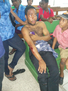 Trevon Bouyea, one of the injured passengers at the Georgetown Public Hospital.