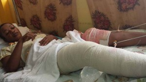 Mawanza Gill strapped to her bed with wounds to both legs.