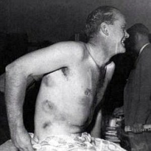 Some of Brian Close's encounters with the West Indies were quite painful, as shown by these several bruises.