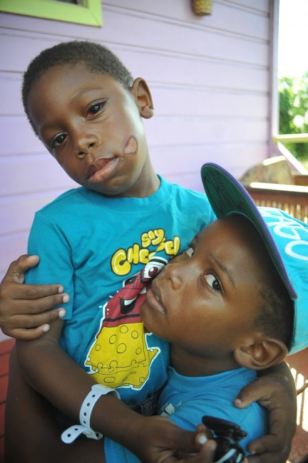Four-year-old Ramarko (left) and seven-year-old Rameko who were hit by a car yesterday.