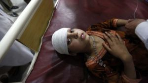 This girl was among those being treated  at a hospital in Peshawar, in Pakistan.