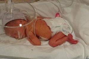 Little Evie in an incubator.