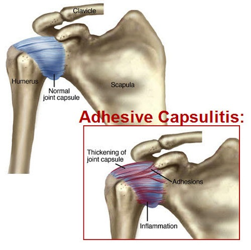 adhesiveXcapsulitis