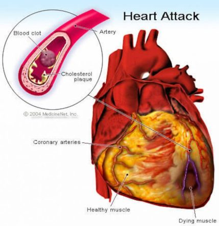 What happens during a heart attack.