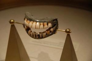 georges-teeth