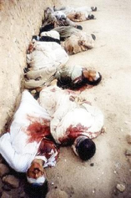 "Iraqi victims of ""glue torture"" (AP Photo)"